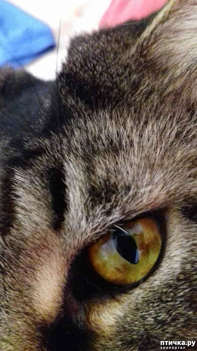 фото 3: Глаза - зеркало здоровья